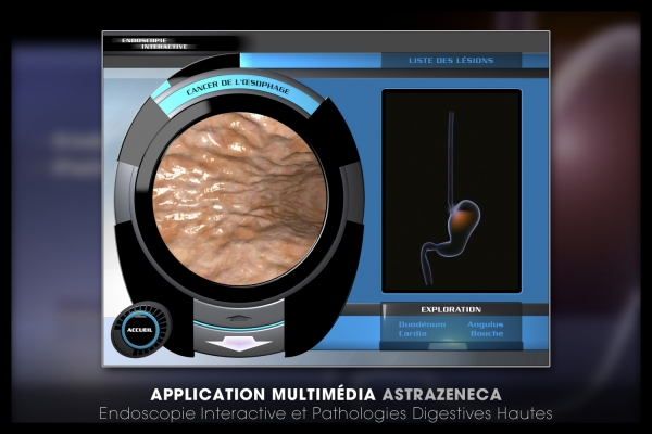 Looktrope Appli Astrazeneca-EIPDH